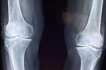 راه حل جدید برای درمان آرتروز زانو